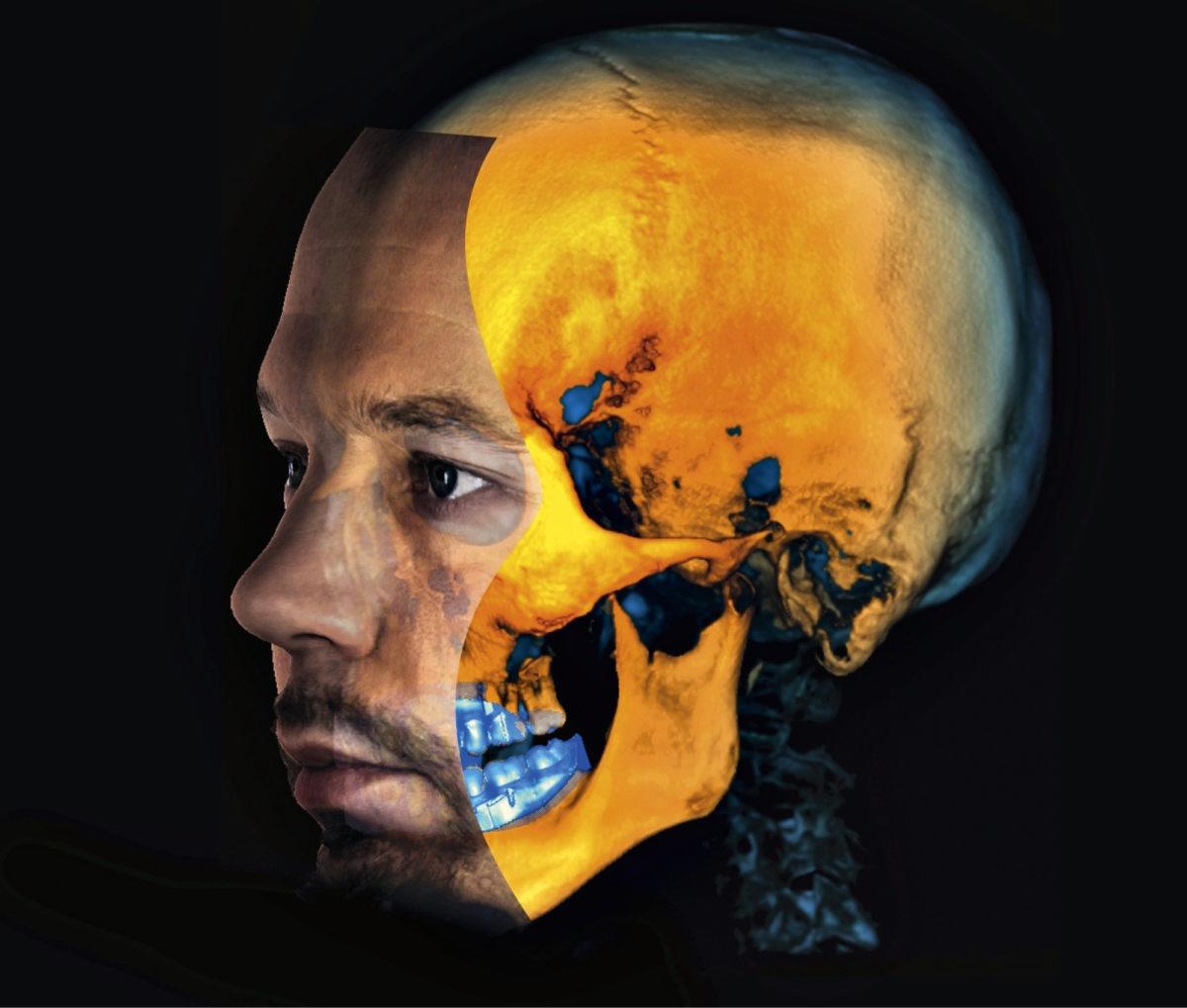 Planmecan kuvantamisjärjestelmiin kuuluvat röntgenkuvaus, laserskannaus ja kolmiulotteinen pintakudoksen valokuvaus. Yhdistelmän avulla hammaslääkäri tai kirurgi voi suunnitella toimenpiteet täsmälleen oikein.